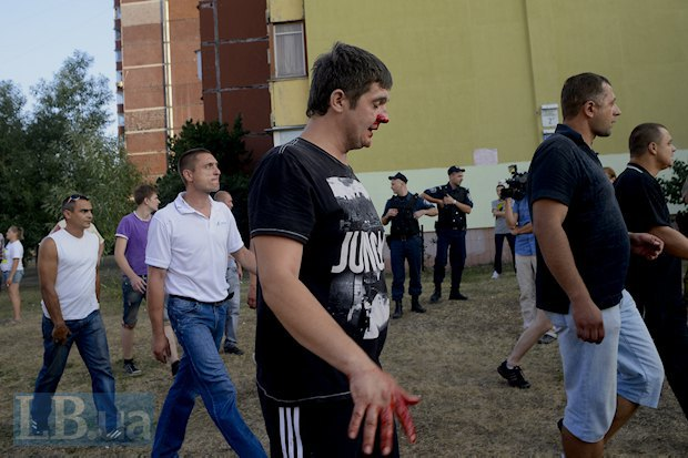 одному из активистов во время драки разбили нос до крови