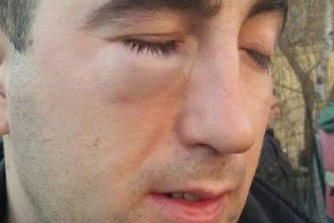 """Співробітник дарницького """"зеленбуду"""", колишній військовий, звинувачує старого чиновника у нападі"""