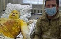 Бойцу с ожогами 80% тела требуется помощь в лечении