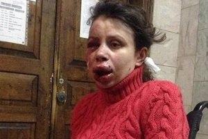Перед нападением Чорновол ходила к домам Пшонки и Захарченко