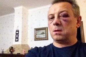 """В """"УДАРе"""" исключают политические мотивы избиения Куренного"""