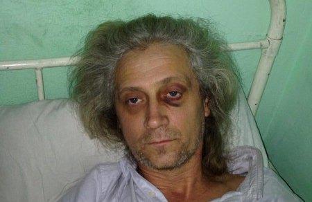 Валерий Гарагуц после избиения