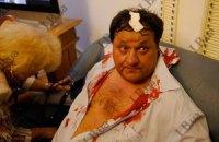 Пострадавшему во время драки бютовцу зашили голову