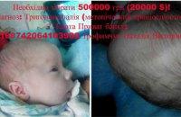 1,5-месячному малышу требуется срочная операция на черепе