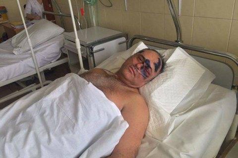 ВОдессе безжалостно избили руководителя регионального совета изОппозиционного блока