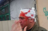 В Одессе милиция возбудила уголовное дело по факту драки