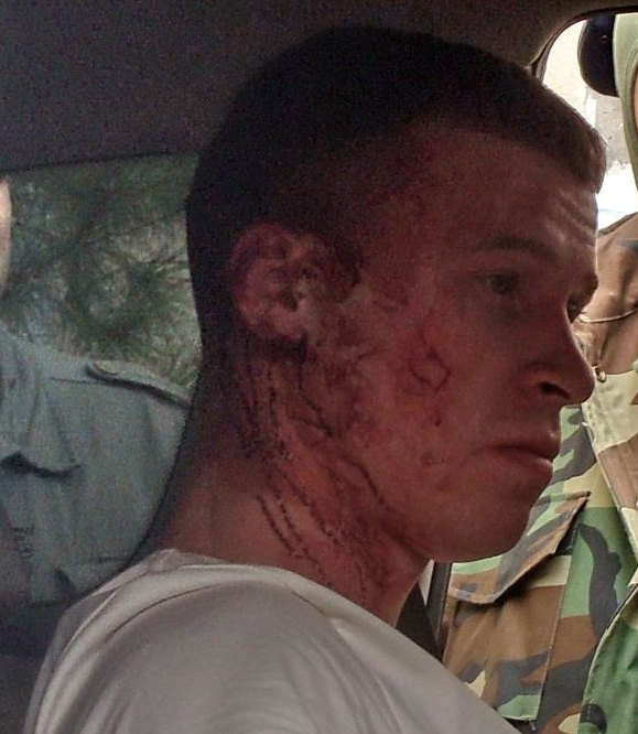 Избитый «самообороной» офицер ВМСУ А.Киселёв