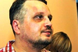 В Херсоне побитого из-за мэра журналиста сделали обвиняемым