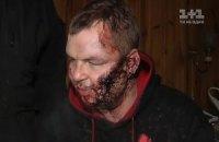 Милиция просит суд поместить Булатова под домашний арест
