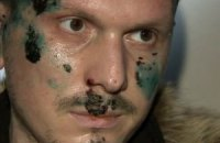 Украина приостановила выдачу России подозреваемого в покушении на Путина