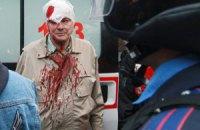 В результате нападения сепаратистов в Донецке пострадало 14 человек, - ОГА