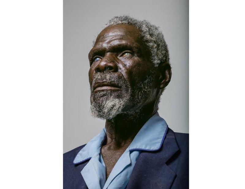 67-летний Герд Гаманаб слишком поздно обратился за медицинской помощью: долгие годы труда на намибском солнце и пыль разрушили роговицы обоих глаз.