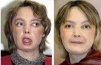 Во Франции умерла первая в мире женщина, которой пересадили лицо