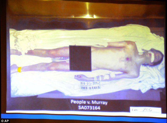 В суде показали фото трупа Майкла Джексона.