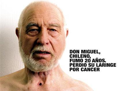 Чили. Дон Мигуэль, курил 20 лет, перенес рак гортани.