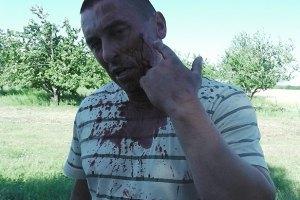 """Милиция задержала еще одного нападавшего на """"Агрофирму Корнацких"""""""