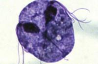Ученые обнаружили связь между трихомониазом и раком простаты