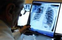 Профілактика туберкульозу в Україні: сумні реалії
