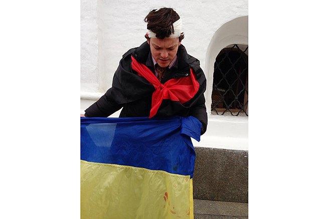 Пострадавщий во время ночного разгона Евромайдана