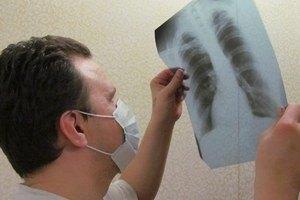 Кабмин запланировал излечить 70% больных туберкулезом