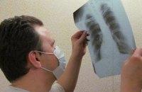 Кабмін запланував вилікувати 70% хворих на туберкульоз