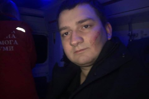 """На депутата от """"Слуги народа"""" совершено нападение в Сумах"""