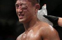 На турнире ММА корейский боец получил жуткую гематому