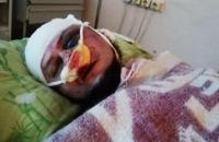 """Активисту """"Нацдружин"""", боровшемуся с наркорекламой в Павлограде, проломили голову"""
