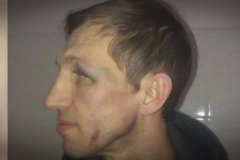 Учителя физкультуры, которого избил отец ученика лицея на Оболони, выписали из больницы