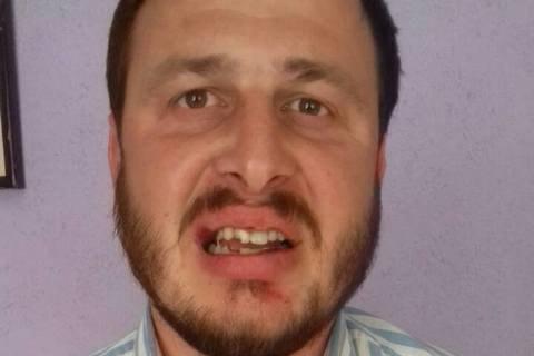 Священик УПЦ МП вибив зуб протоієрею УПЦ КП на Рівненщині