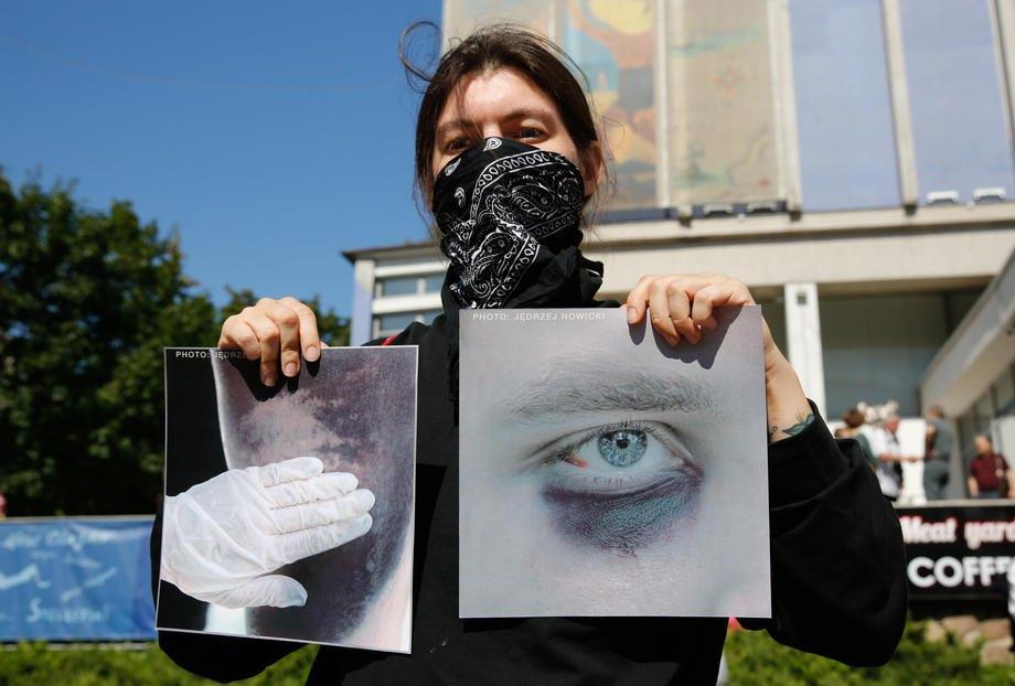Жінка тримає фотографію людини після побиття ОМОНом на акції протесту в Мінську, 15 серпня 2020