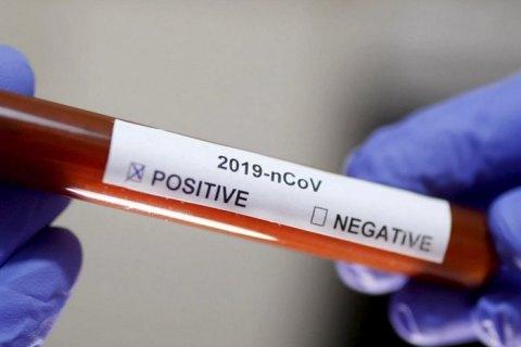Число жертв коронавируса в мире превысило 18,9 тыс., выздоровели 108,5 тыс. человек