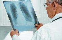 Зеленський: Україна планує подолати епідемію туберкульозу до 2030 року