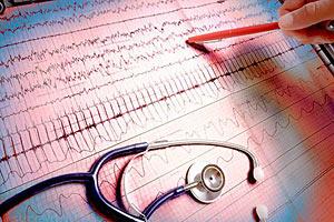 60% смертей в Украине - от сердечных заболеваний