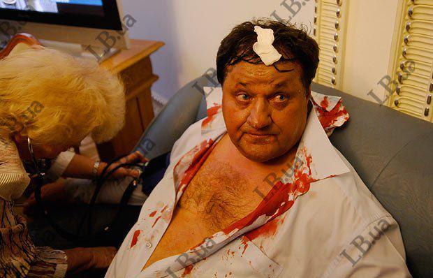 Бютовцу разбили голову, предположительно, кастетом