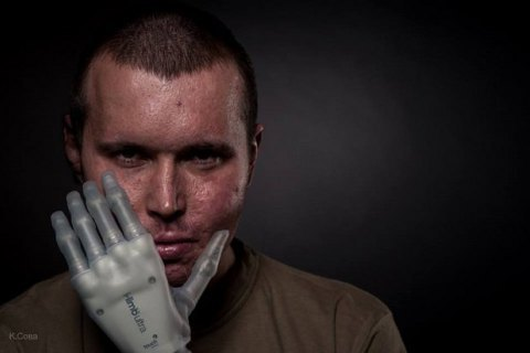Біонічні протези рук встановлюватимуть в Україні з наступного року