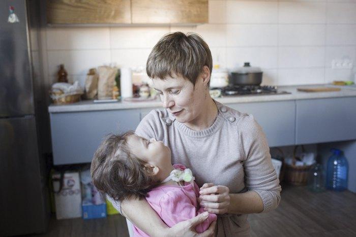 Оксана з донькою Сонею вдома у Львові, 24 січня 2020. У дівчинки рідкісне захворювання - синдром Міллера-Дікера.