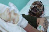В Забайкалье собирают деньги на лечение обгоревшего на Донбассе бурята