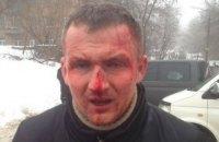 Побиття нардепа Левченка розслідують як насильство проти державного діяча