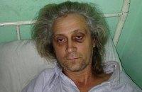Апелляцию по задержанному на Банковой Валерию Гарагуцу перенесли из-за того, что его не доставили в суд