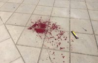 МВС почало розслідувати поранення міліціонера на Марші рівності