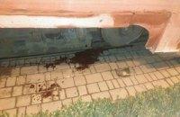 Одессит лишился ноги после падения под трамвай