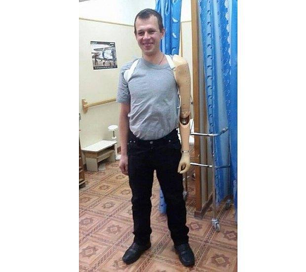 Сергей после протезирования
