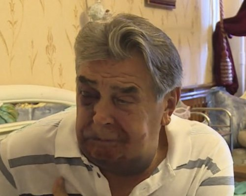 Анатолій Франчук після пограбування.