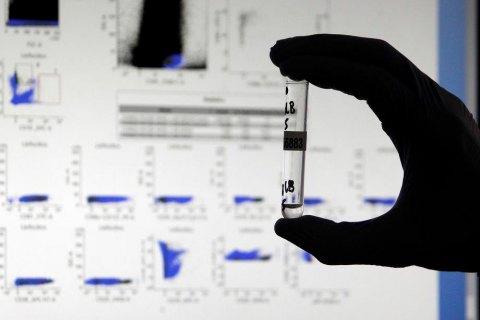 Третина українців мають антитіла до коронавірусу, - дослідження МОЗ
