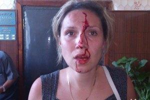 Крымский депутат избил семейную пару в своем кабинете