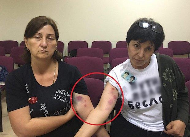 Жанна Цирихова и Элла Кесаева в суде показывают синяки на руках, оставшиеся после задержания.