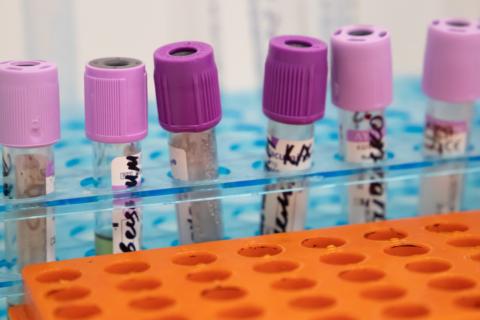 У ЗСУ зафіксовано 21 новий випадок коронавірусу