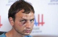 З полону звільнено бійця, який заявив про великі втрати ЗСУ в Мар'їнці