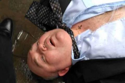 В Черновцах избили сторонника особого статуса Западной Украины